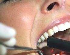 Las limpiezas dentales deben hacerse cada 6 meses.
