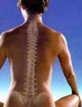 Osteoporosis,condena para las personas con bajos niveles de calcio.