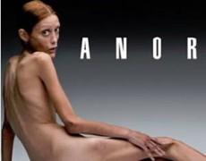 La modelo sufría de anorexia desde los 13 años.