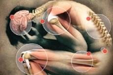 La fibromalgia presenta síntomas como dolor de cabeza, calambres en brazos y piernas, irritablidad y depresión.