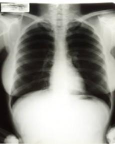 Si fumas debes practicarte una radiografía de tórax mínimo cada año.