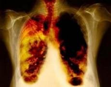 La tos crónica es señal de alerta sobre todo si tiene sangre.