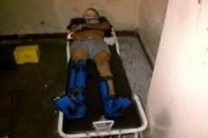 Al huir cayó del 3er. piso y estuvo a punto de quedar paralítico.